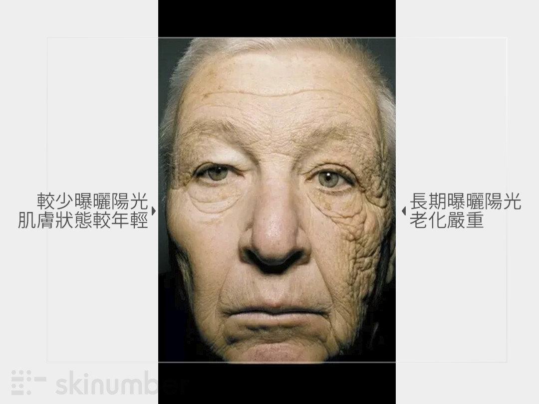 陽光對肌膚老化的影響